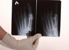 Bone_pain-500x325