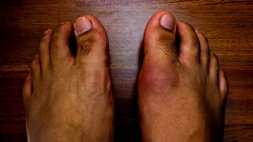 8 Foods that Cause Gout