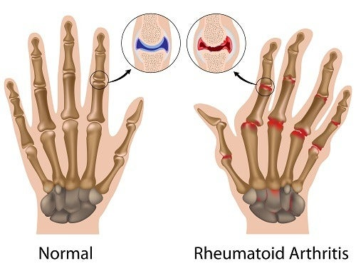 Suffer From Rheumatoid Arthritis? Here's Some Advice