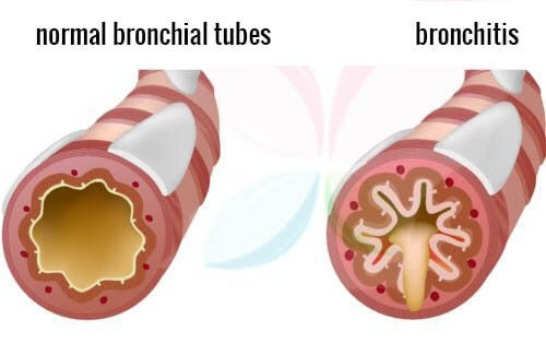 What Foods To Eat When You Have Bronchitis
