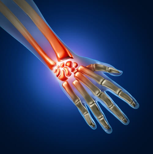 the carpal tunnel is in your wrist