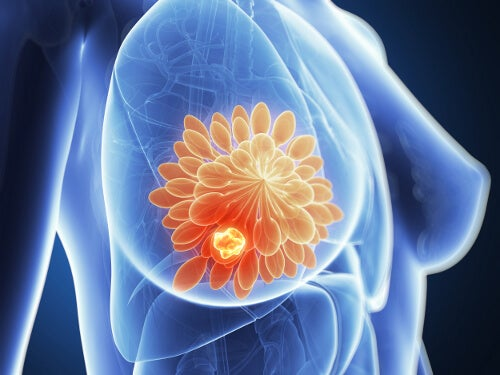 Cyst-in-the-breast