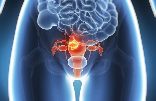 Natural Relief for Endometriosis