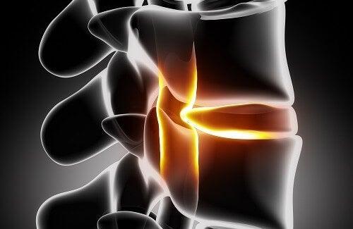 Treatment and Prevention of Sciatica