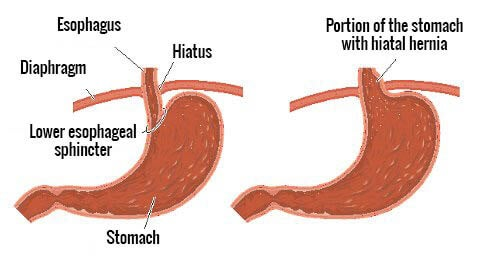 Natural Remedies for Hiatal Hernia