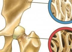 Osteoporosis1-700x325