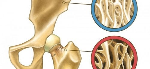 This article covers the natural prevention of osteoporosis.