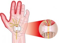 The-carpal-tunnel-500x325
