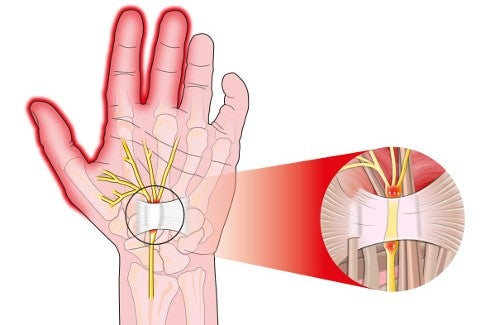 Causes of and Treatment for Carpal Tunnel Syndrome