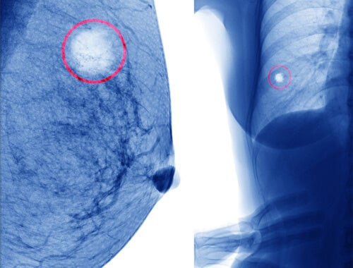 Mammary cyst in an x-ray