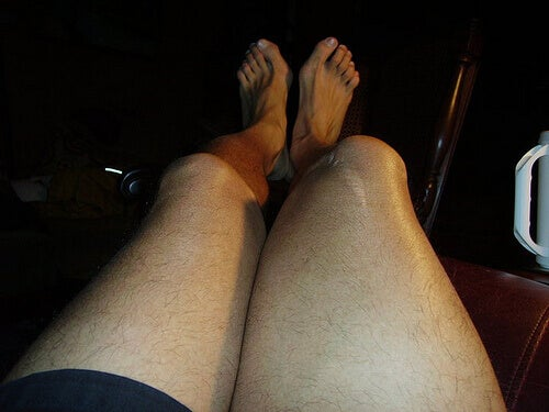Bar legs showing swollen knees and ankles