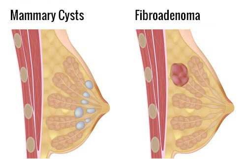 How to Avoid Mammary Cysts