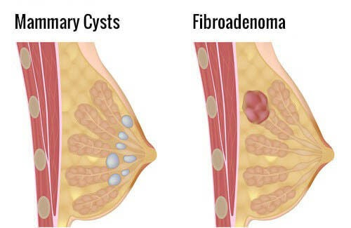How Do I Prevent Mammary Cysts?