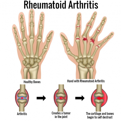 Is There A Cure For Rheumatoid Arthritis