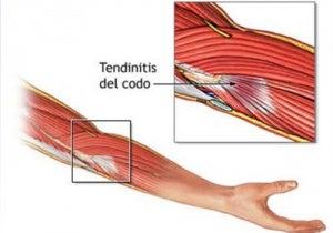 tendonitis 2