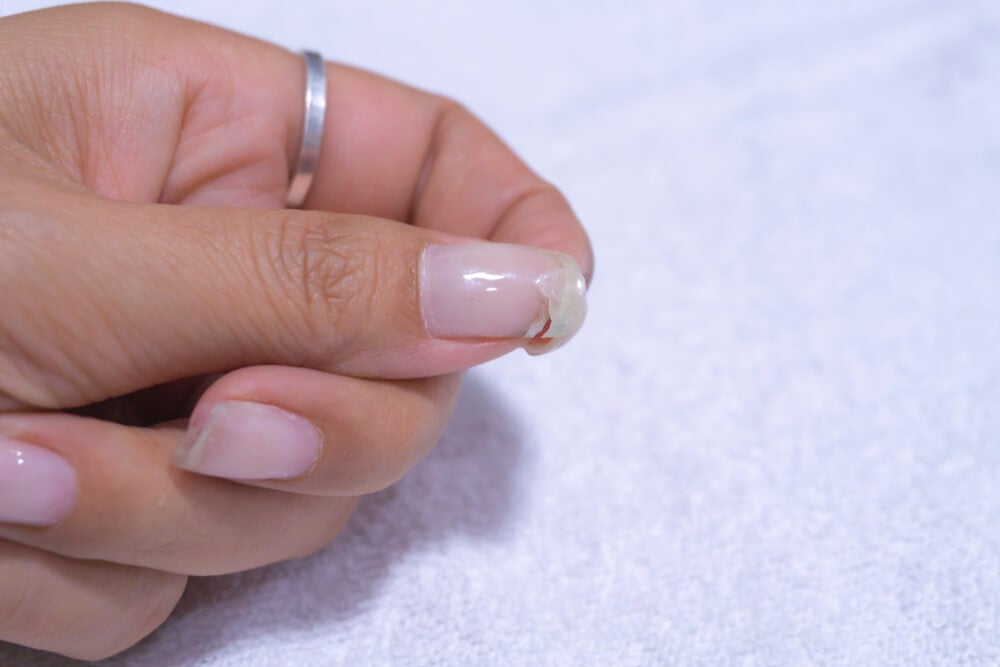 How to Prevent Nails from Breaking - Step To Health