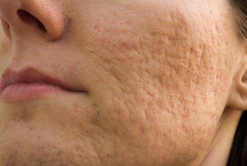 It's important to deal with acne scars and skin health.