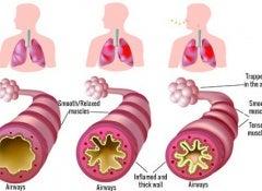 Asthma copy