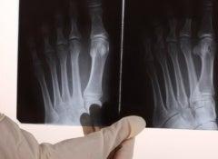 Bone-Pain-700x325