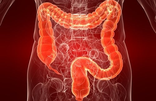 Irritable Bowel Syndrome: IBS Symptoms in Women
