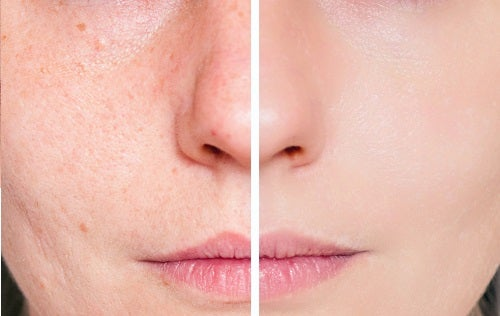 Acne Scars and Skin Health