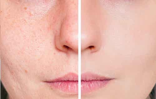 Acne Scars and Skin Health
