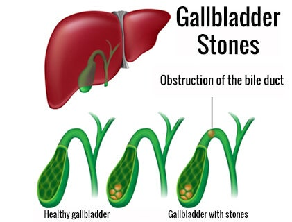 What Are the Symptoms of Gallbladder Stones?