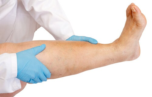 Leg Swelling: Causes and Cures