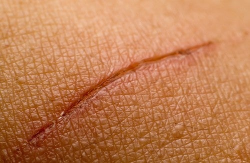 Natural Remedies that May Help Treat Scars