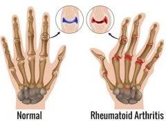 Rheumatoid-arthritis copy