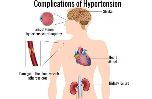 The Best Ways to Fight High Blood Pressure