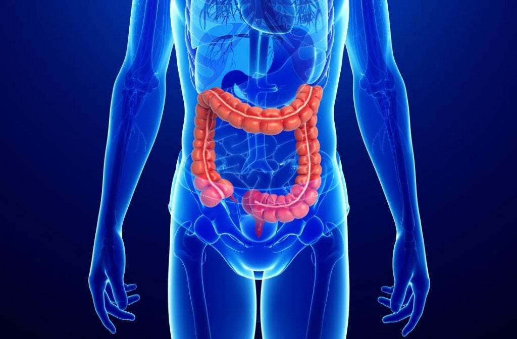 Colitis is a serious condition
