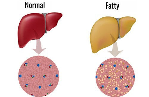 Fighting a Fatty Liver: Here's our Advice