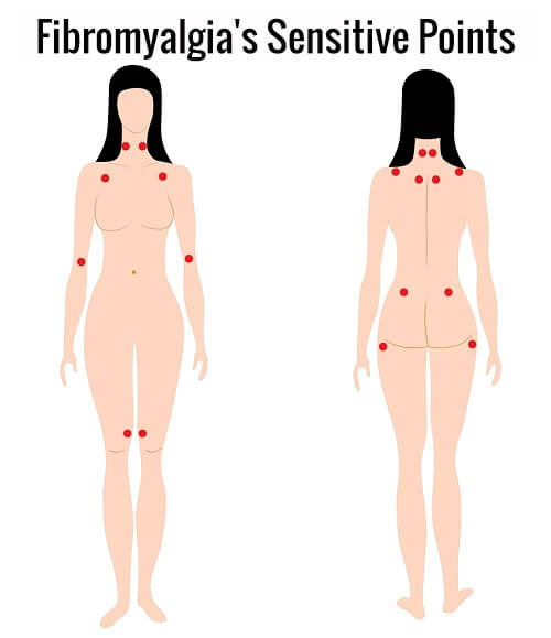 fibromyalgia's sensitive points