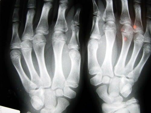 Osteoarthritis.