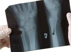 strengthen-bones-500x325