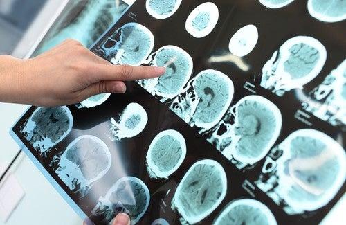 Alzheimer's Disease Prevention