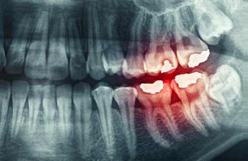 Causes and Consequences of Bruxism