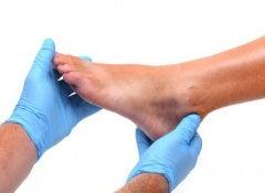 Swollen feet 1