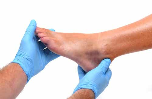The Causes of Swollen Ankles and Feet