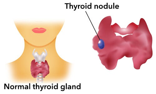 Thyroid3