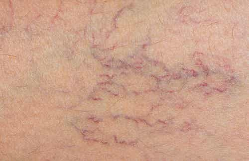 Indian Horse-Chestnuts: A Possible Ally Against Varicose Veins