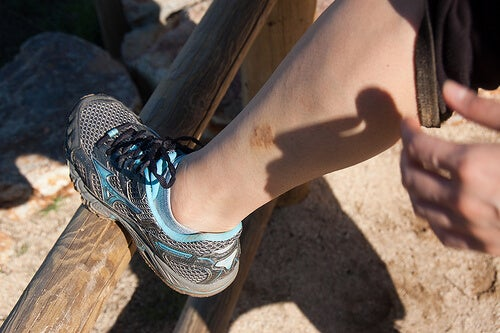 Eczema-on-leg