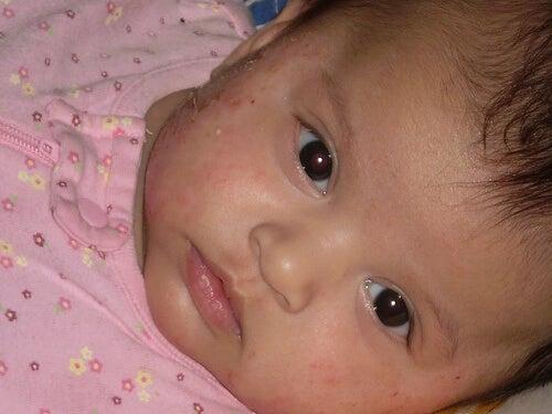 eczema-on-baby