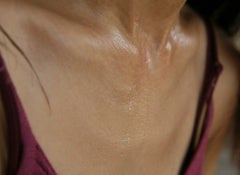 excessive-sweating-500x325