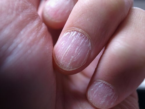 finger nail cracked in half