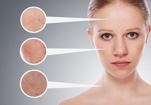 woman with different skin problems