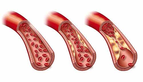 A Weekly Diet to Lower Triglycerides