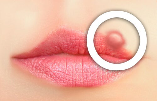 How to Possibly Prevent Herpes Labialis