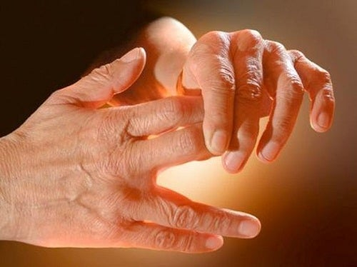 Causes of Tingling in Hands and Feet
